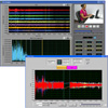 Electroencephalography (EEG) Analysis Software
