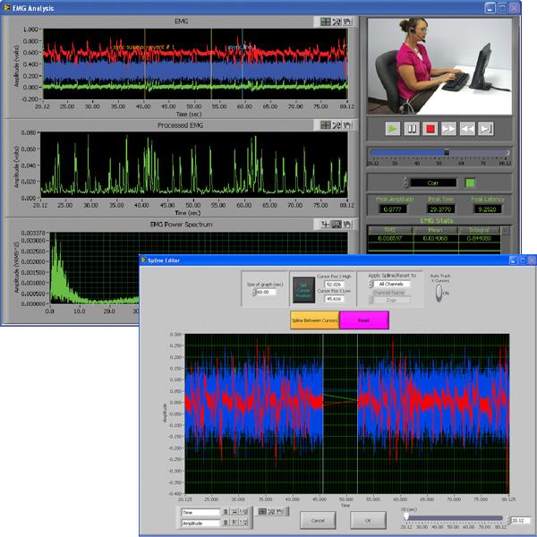 Electromyography (EMG) Analysis Software