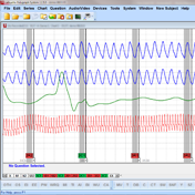 Polygraph Software